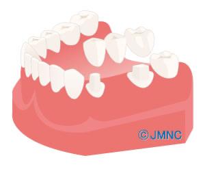 残った隣在歯を利用した固定制のブリッジの場合