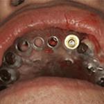 インプラント手術中の画像