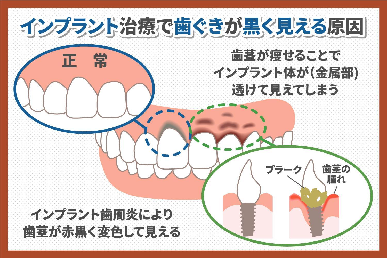 インプラント治療で歯茎が黒くなるのは本当?