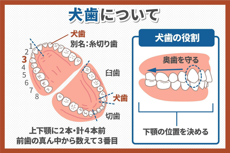 犬歯が抜歯すべきパターンと犬歯のインプラント治療のメリットを解説