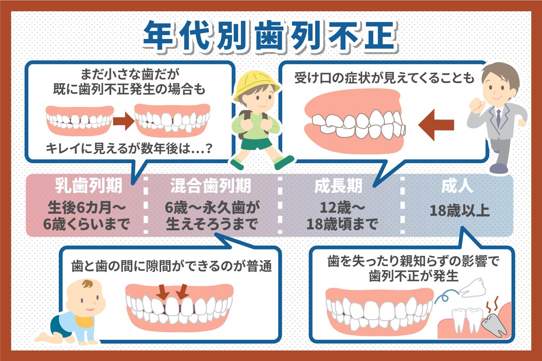 歯列不正とは?種類・症状・治療法を解説